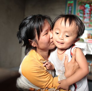 Dang Hong Dan is four years old but he bears the scars of the Vietnam war that came to an end 40 years ago (Unicef/PA)